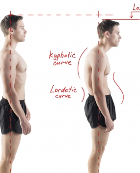 Systematize Your Posture Exams to Optimize Your Outcomes