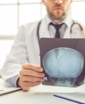 Why Postural Correction Is Important For Patients With Concussion